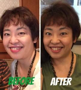 リフトアップ 美顔効果